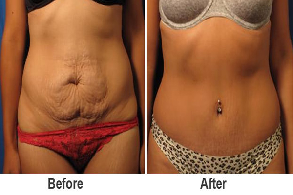 Liposuction merkezi seçimi, Liposuction yaptırılacak yer tercihi, Liposuction merkezlerinde dikkat edilmesi gerekenler