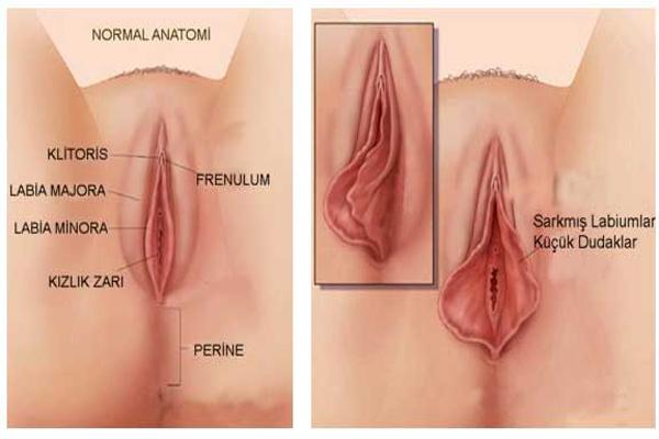 vajina estetiğinin önemi nedir, vajina estetiği neden yapılır, kimler vajina estetiği yaptırabilir