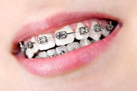 ortodonti uygulamaları, ortodonti uygulama süresi