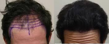 saç ekim doktoru, saç ekimi yapan doktorlar