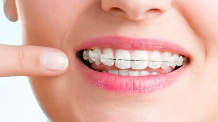 görünmez diş teli nedir, görünmez diş teli kullanımı, görünmez diş teli nasıl kullanılır