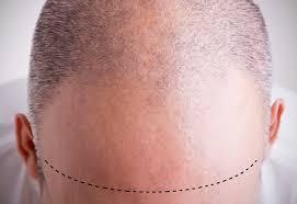 saç ekimi nedir, saç ekimi nasıl yapılır, saç ekimi kimlere yapılır