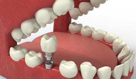 implant kalitesi, implant yapatırma, istanbulda implant yapımı