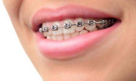 diş teli kullanımı, diş teli ne işe yaramaktadır