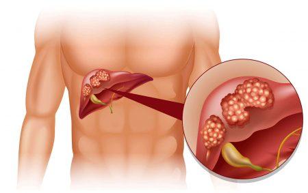 karaciğer kanseri, karaciğer kanseri önlemleri, karaciğer kanserinden korunma