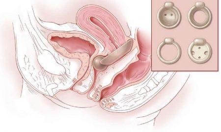 rahim sarkması belirtileri, rahim sarkması nedenleri, rahim sarkması tedavisi