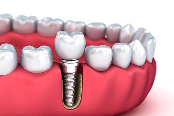 implant fiyatları, implant yapımı, implant nasıl yapılır