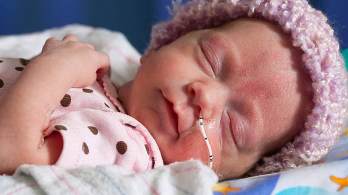 prematüre bebek, prematüre bebek gelişimi nasıldır, prematüre bebeklerin yaşam süreci