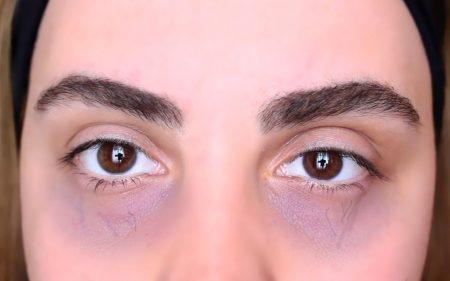 göz altı morluğu bitkisel tedavisi, bitkisel tedavi ile göz altı morluğu tedavisi, göz altı morluklarını geçirme yöntemleri