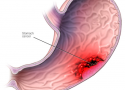 mide kanseri türleri, mide kanseri belirtisi, mide kanseri teşhisi