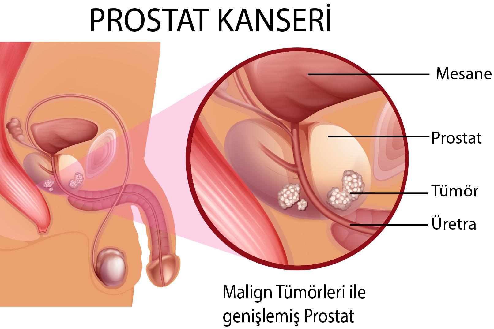 prostat kanseri, prostat kanseri nedenleri, prostat kanserinin tetikleyicileri