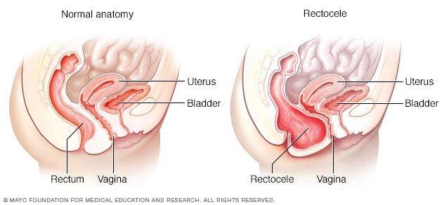 rektosel nedir, bağırsak fıtığı nedir, bağırsak fıtığı nasıl tedavisi edilir